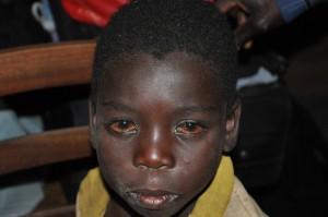 Pacient s očním onemocněním